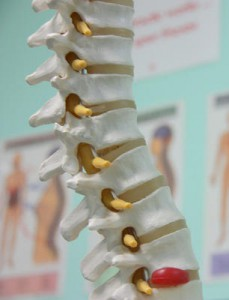 The spine and a herniated disc